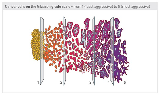Cancer -cells -on -the -gleason -grade -scale