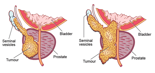 Locally advanced prostate cancer